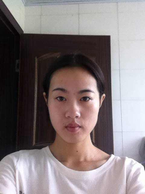 垫下巴手术后会影响面部表情吗,你还敢做吗?这个说法究竟有没有科学根据呢。