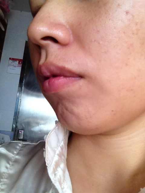 垫下巴手术后的恢复期是多久,我上牙槽遗传性有点突出.下巴后缩.我要垫下巴 但是不知道是选择膨体好还是硅胶  是不是一定要选择进口的纠结 .我听说垫硅胶10多年后会出现很多问题.有没有专业的专家解答下谢谢