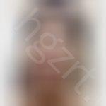去眼袋手术有什么后遗症?会不会留疤之类的,要是留疤的话就太不值得了吧?
