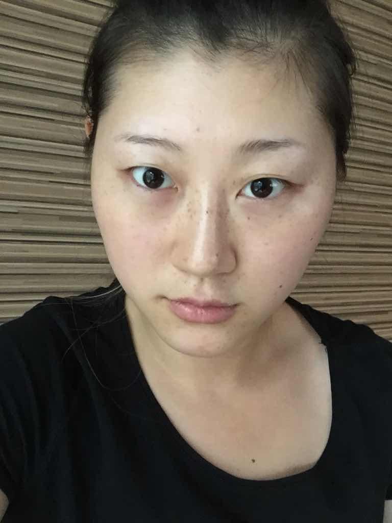 做双眼皮,为什么术后有人恢复快,有人恢复慢?!一般情况下多久能恢复,看看我的时间够不够。
