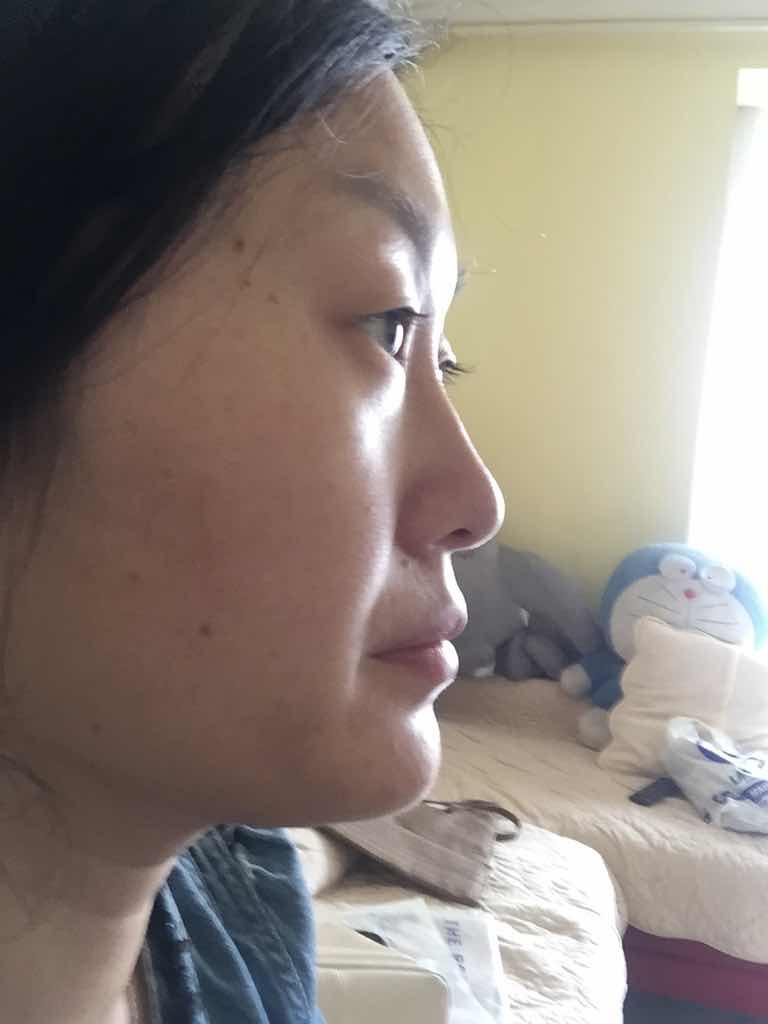 双眼皮手术多久能恢复?鼻子是做假体还是综合隆鼻呢?除皱是否也需要一起做了。。。
