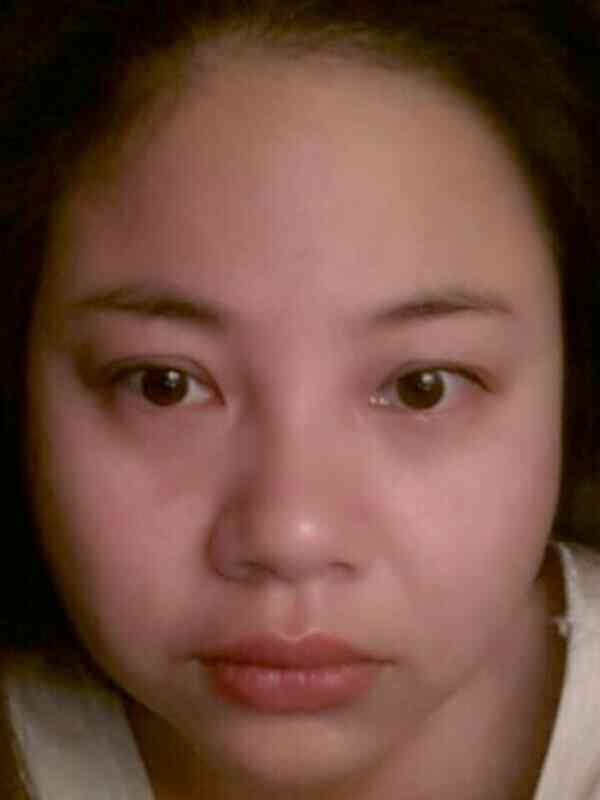 面部吸脂会不会有风险?我脸太圆了,看起来肉肉的,想改变,鼻子看起来大,嘴巴也大