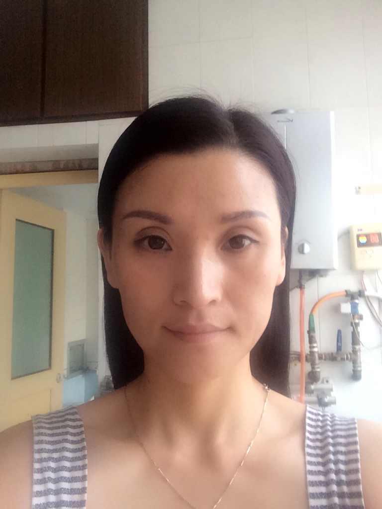 双眼皮手术如何做得自然?只有一星期的假期,够时间恢复吗,是下定决心想要改变了。