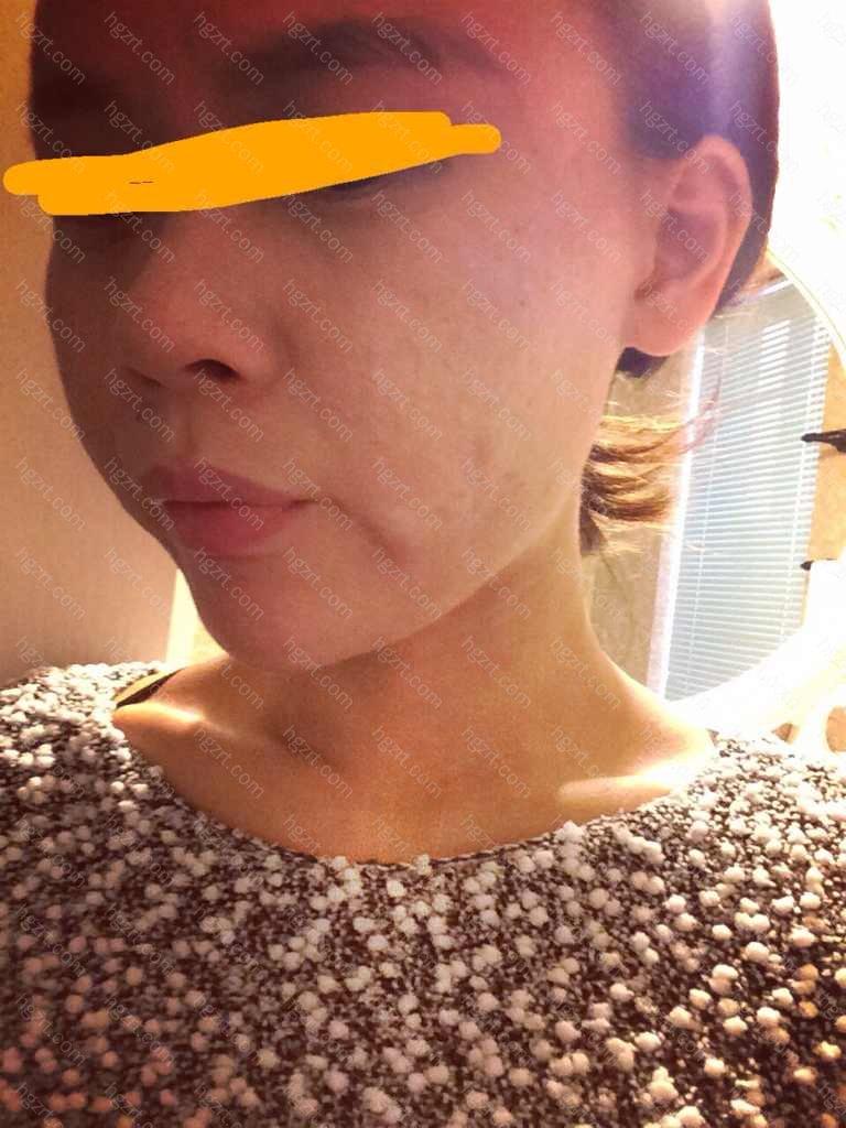 光子嫩肤会使皮肤变薄吗?毛孔粗大