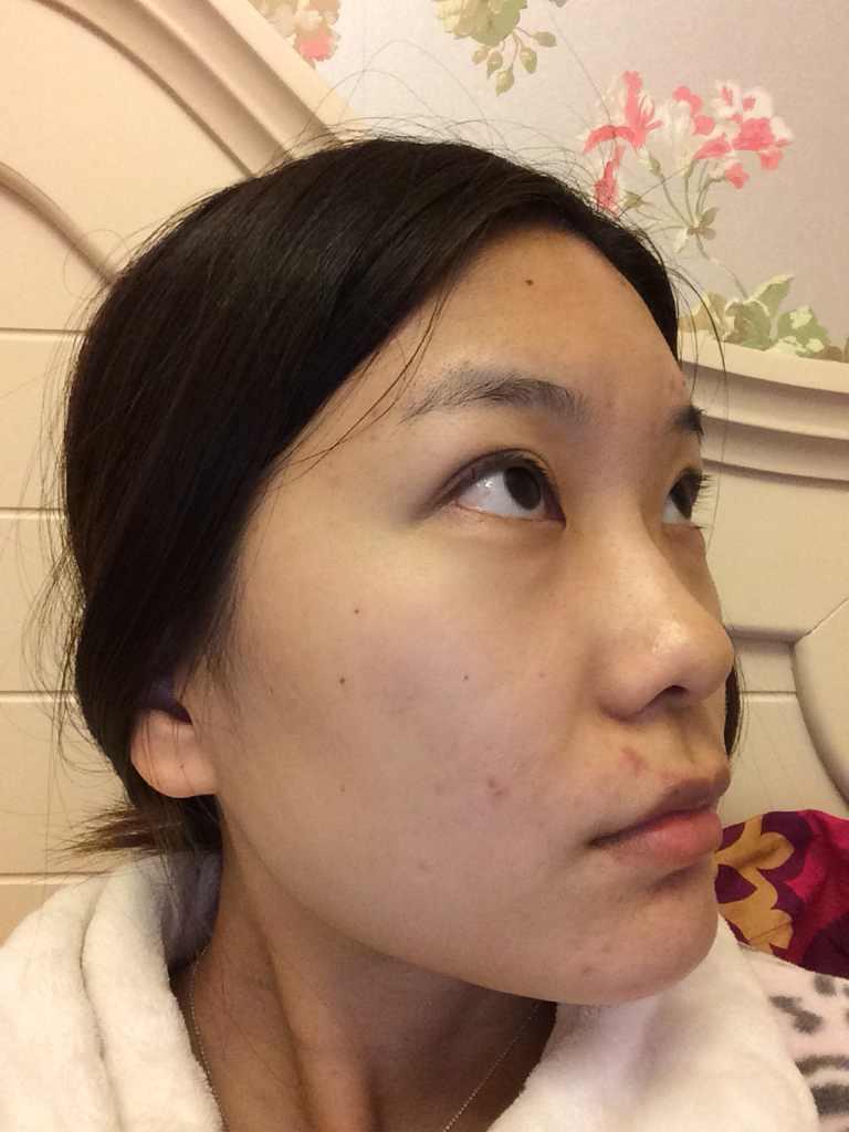 割双眼皮后不对称怎么办?眼睛六年前做的……左眼凑合,右眼没做好……还有救吗,另外脸型我该怎么整阿,感觉我两边脸好像一边高一边低一样。眉毛都是一边改一边低的。我想做脸型,如果眼睛还能修复就修复一下,还有鼻子…… 还有其他地方吗,请给点建议。