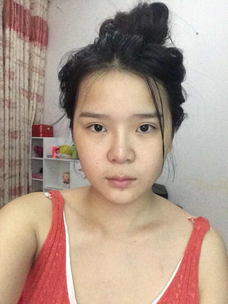 鼻头缩小术是怎么做的呢?我哪里需要改善也能变的完美?我的侧脸很不完美,不知道哪里要改善?