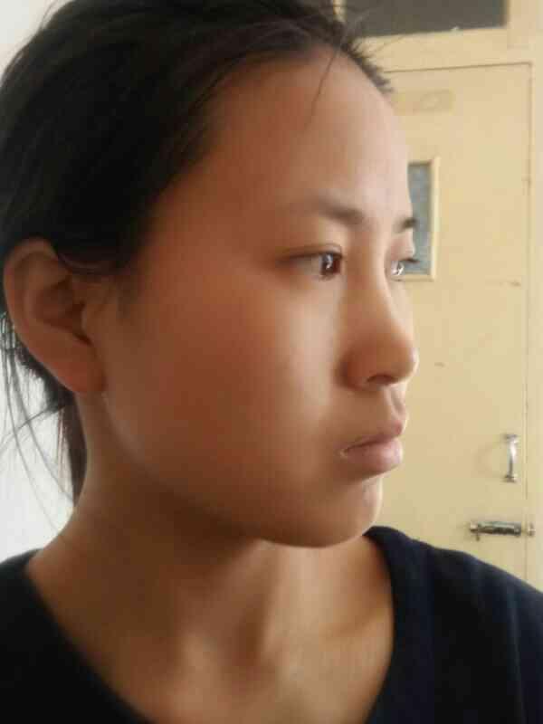 面部不对称矫正手术有什么方法?有些突嘴,不是骨骼性的,需要手术吗