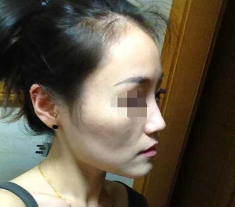 削骨瘦脸后需要注意的问题有哪些?术前都需要接受哪些检查呢,还是有点害怕。