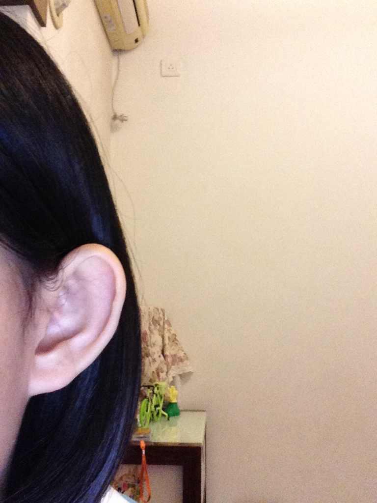 埋线双眼皮术后恢复要多久?另外能做招风耳吗?不美丽的说,很不美丽!