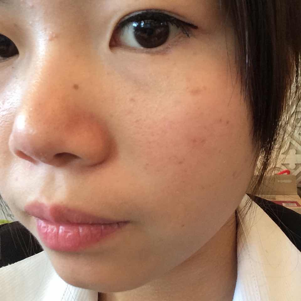 假体隆鼻需要拆线吗?我想整的可爱一点 ,特备的不满意自己的相貌,好自卑。