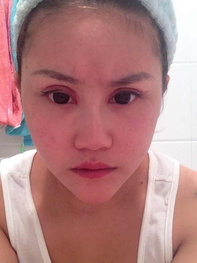 双眼皮失败修复,方法有多少?还有救吗,这样的眼睛每天看起来就像是纠结着一样,囧啊!