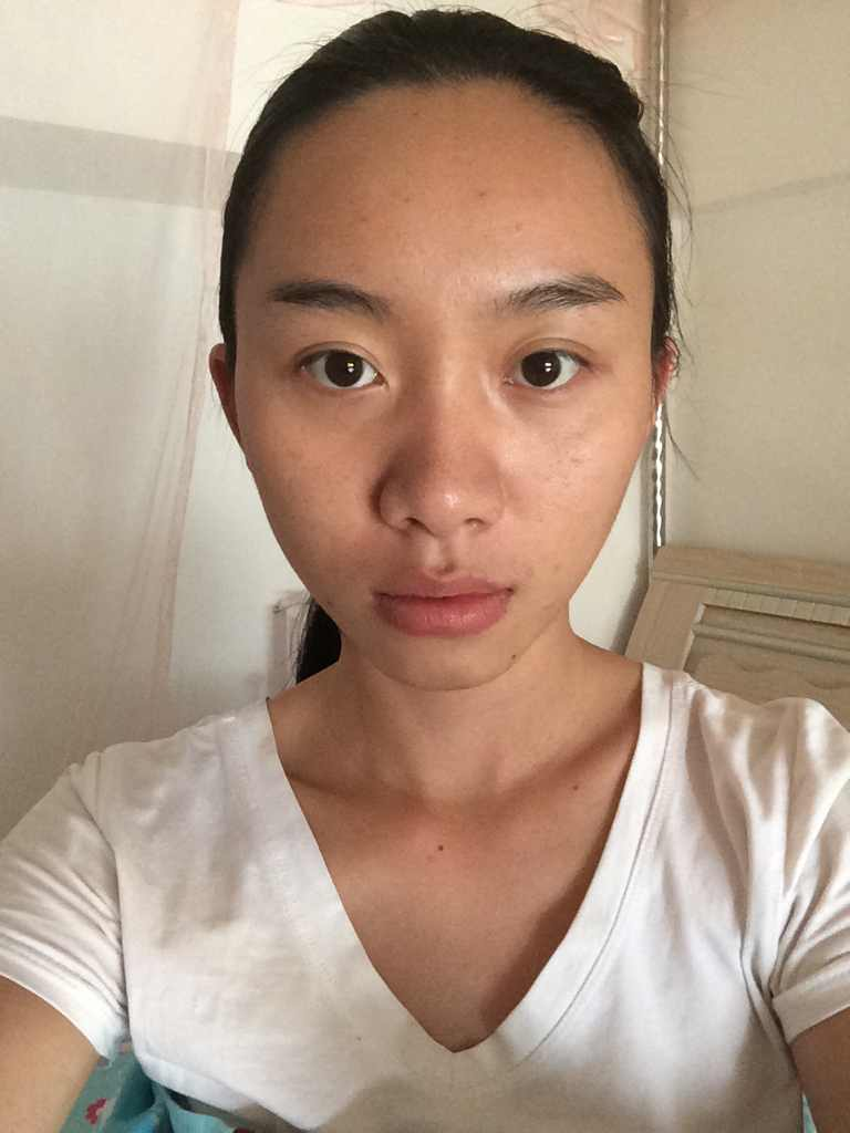 韩国鼻头整形是怎么做的?我需要整的地方是不是特别多,分别要多少钱?