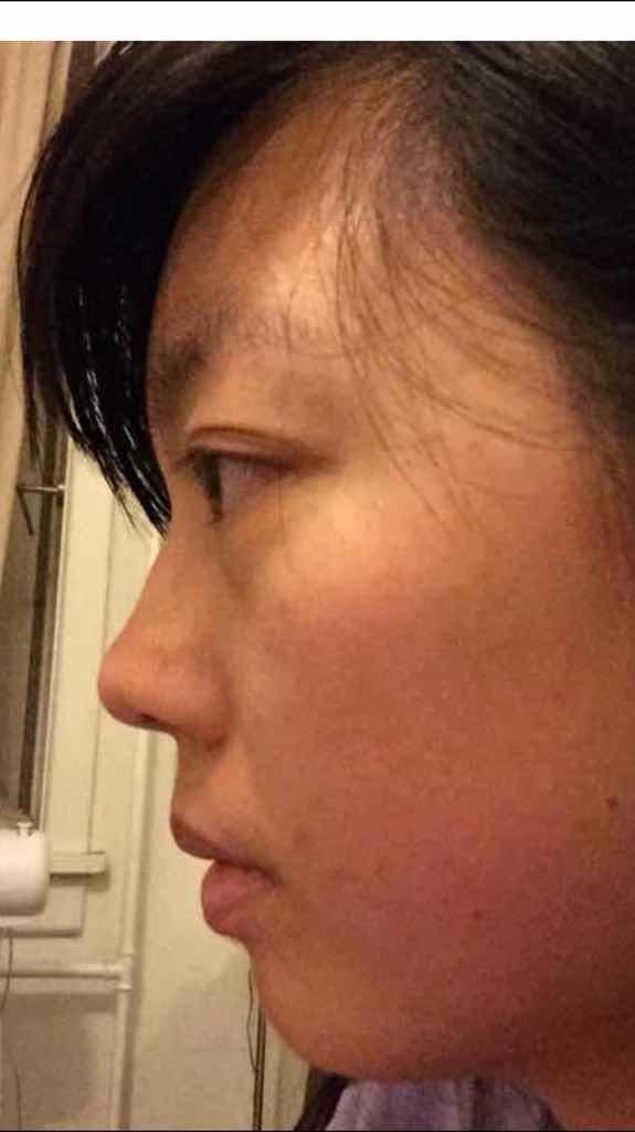 不化妆就很没精神…眼睛非常敏感,连种植假睫毛都会发炎眼睛红,请问,我能做去眼袋手术吗?