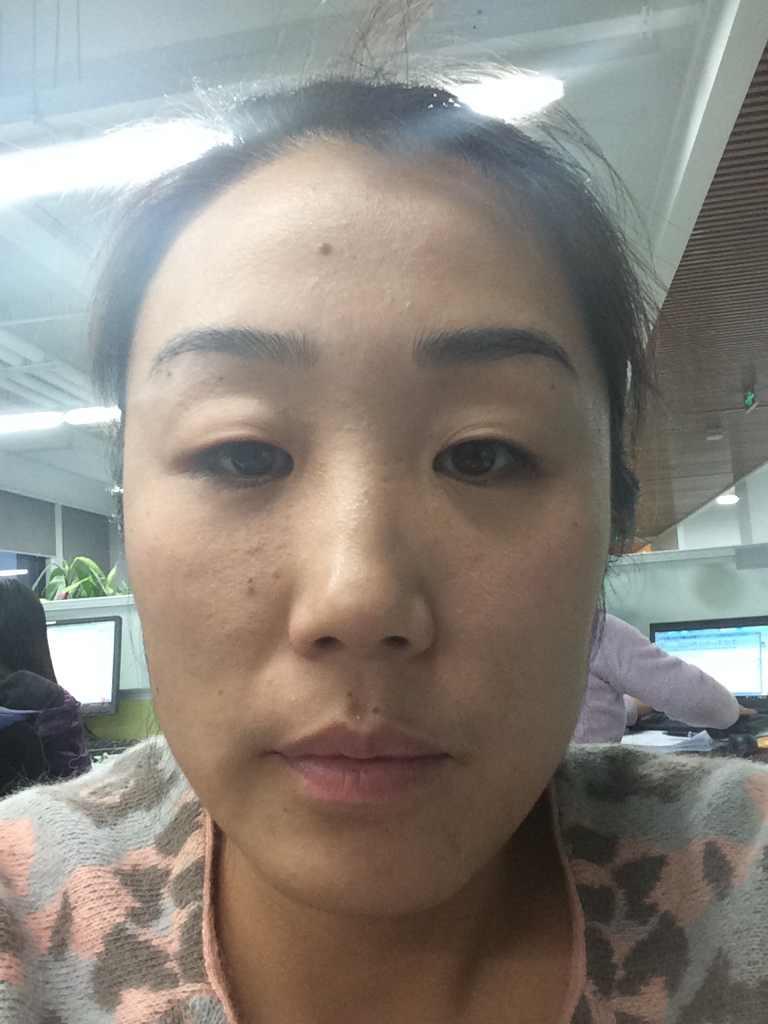 开眼角,手术效果好不好,术后护理说了算!真的是这样的吗,我的眼睛需不需要呢究竟?