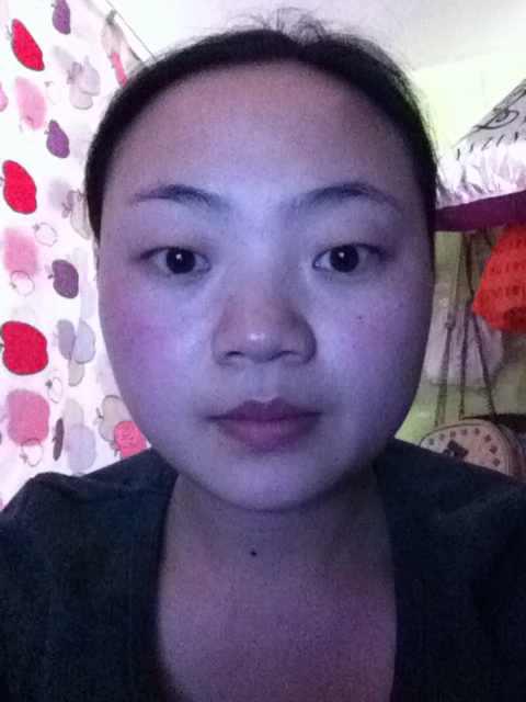 颧骨整形手术适合哪些人群?我的脸需要改动的有哪些?求诊断分析。谢谢!
