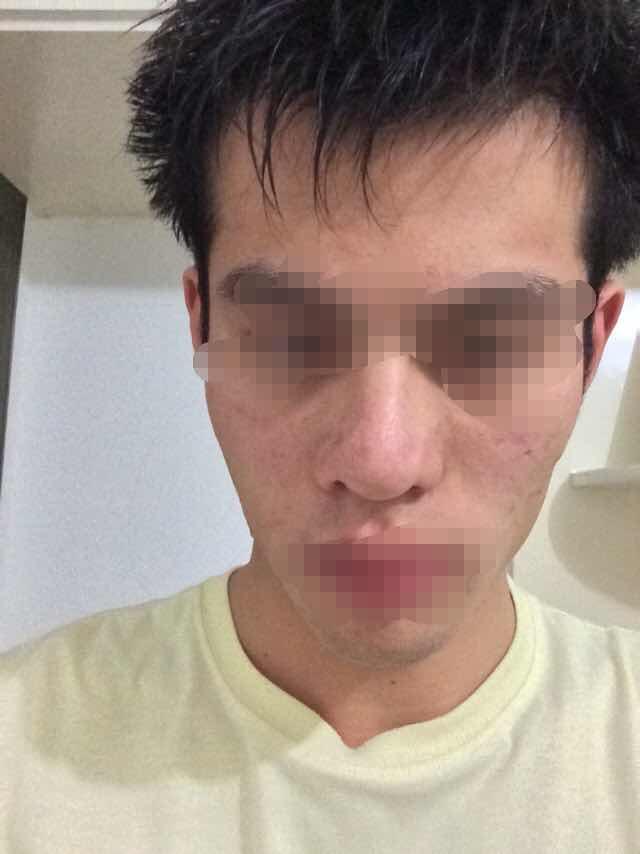 发际线移植的神奇功效能让大脸变小脸吗?还有哪里需要改的吗?