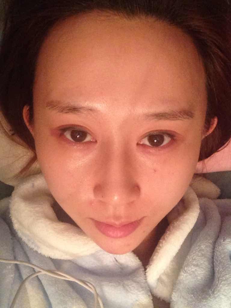割双眼皮有后遗症吗?做了双眼皮没多久,最近手贱看网上一些文章,说是有后遗症,是这样的吗?