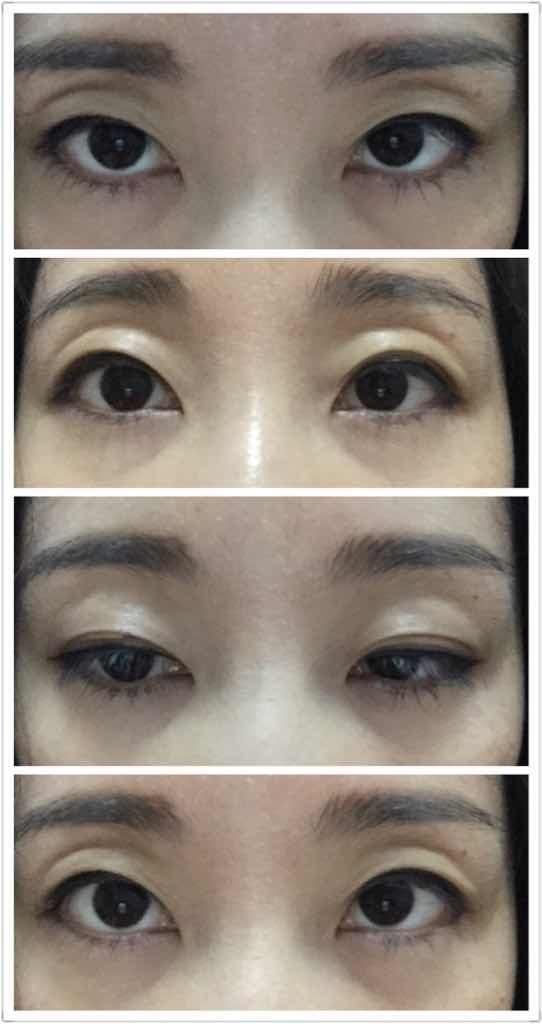 眼部脂肪填充需注意的事项有哪些?现在眼睛看起来特别没有精神,像是陷下去了一样!