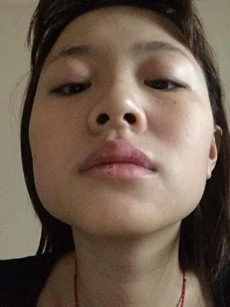 眼睛一单一双,双眼皮手术我只做一只行吗?额头偏大  眼睛一双一不双 没下巴。嘴唇太厚 脸型不好看!