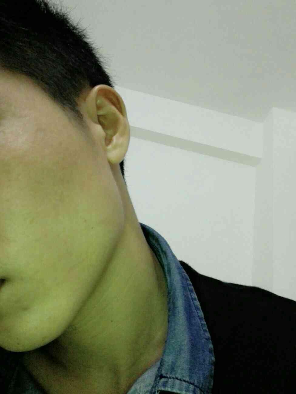 激光去痘疤有副作用吗?脸上这样真实影响我的形象,我也是正儿八经的小鲜肉一枚好吗?