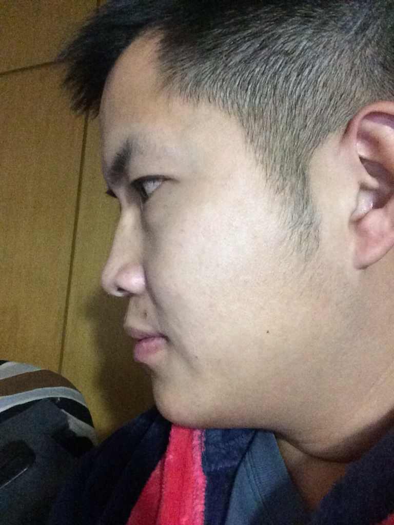 韩式隆鼻有什么特点?我适合吗?怎样才能让我变成完美型男?好想找个女神做女友啊!
