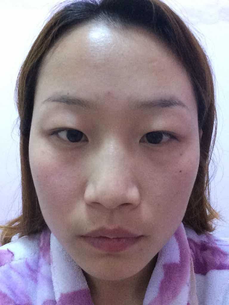面部吸脂减肥靠谱吗?不化妆不P图就丑成这样,想改变变漂亮。感觉侧脸太大了,鼻子也不好看,脸上肉多