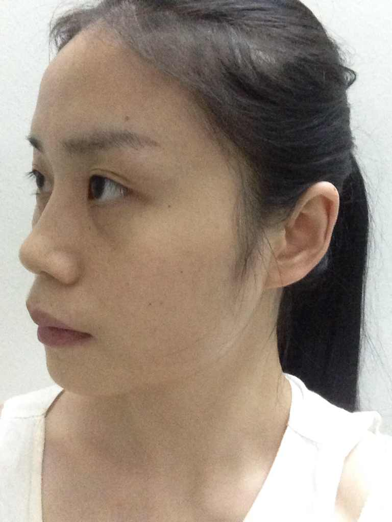 我适合做韩式隆鼻吗?据说这种方法比较好一些,想要做良好最安全的手术,同时可以推荐下医院奥。