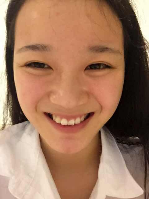 发际线过高可以种植美人尖调整吗?笑起来很丑,有时笑起来就跟哭似的,笑的时候颧骨那肉肉的,变得很高,显得眼睛很小,而且嘴角也不上扬,鼻翼两边的线也很深,求问专家要怎么整才有好看的笑容