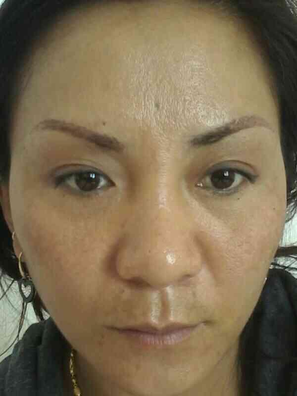 激光嫩肤效果好不好?皮肤特别不好,现在年纪也上来了,特别的凶。