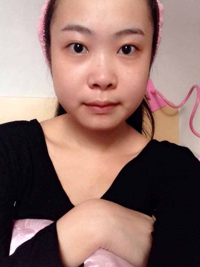 假体隆鼻效果怎么样,安全吗,希望遇见最专业的设计改变我的人生!