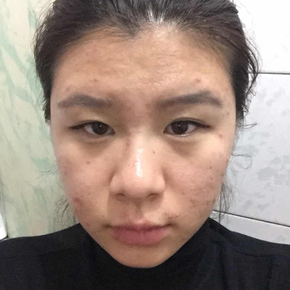 激光祛痘效果怎么样,看看我这一脸无处安放的痘痘求大家来拯救我,有没有做过的说说呢~