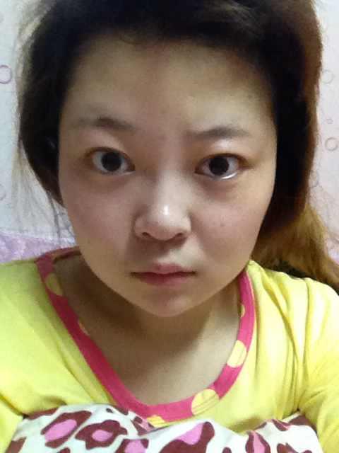 眼皮下垂矫正手术怎么样?看看我的眼睛是不是需要做这样的手术,看起来好丑!