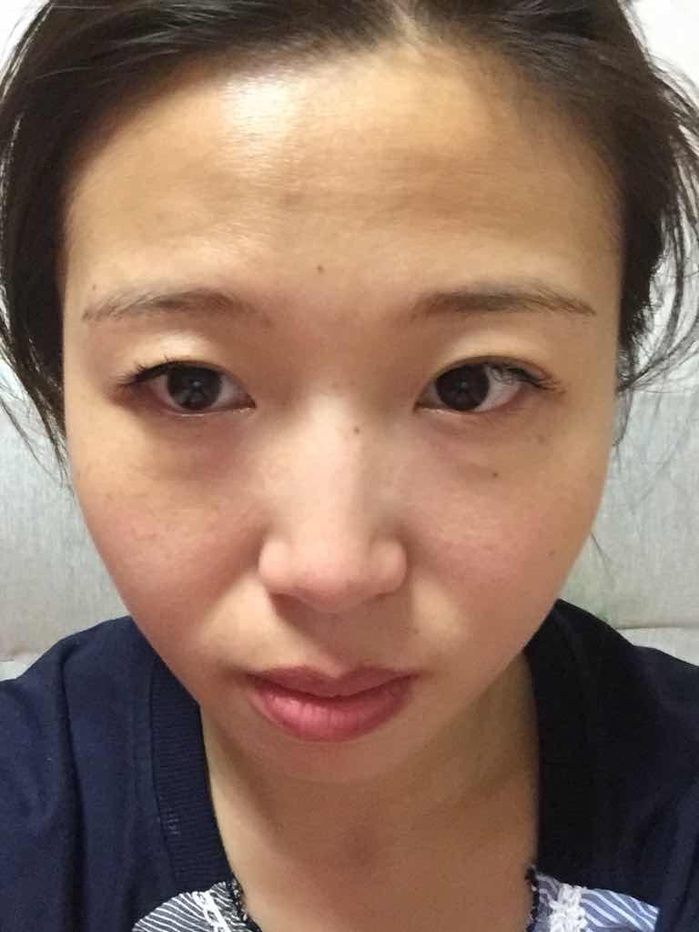 玻尿酸注射去除法令纹注意事项有哪些,想把脸上的皱纹都给去掉,脂肪好还是玻尿酸好?