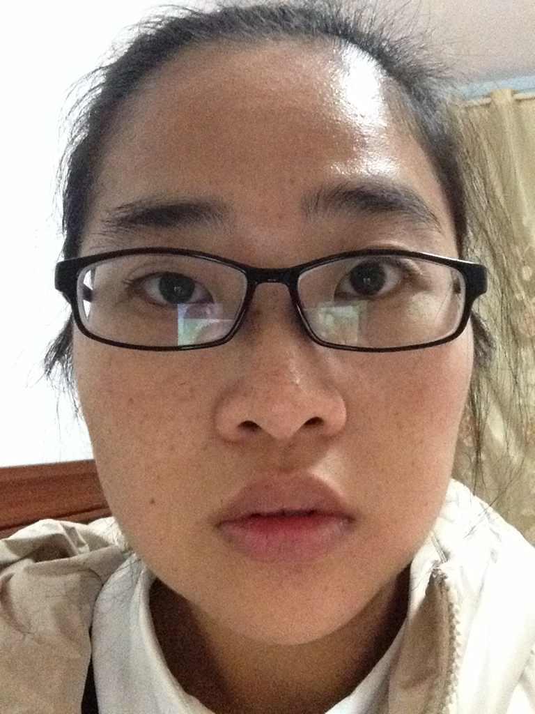 做双眼皮手术什么时候好,我的眼睛适不适合呢,还有就是能不能一起把近视眼手术也做了?