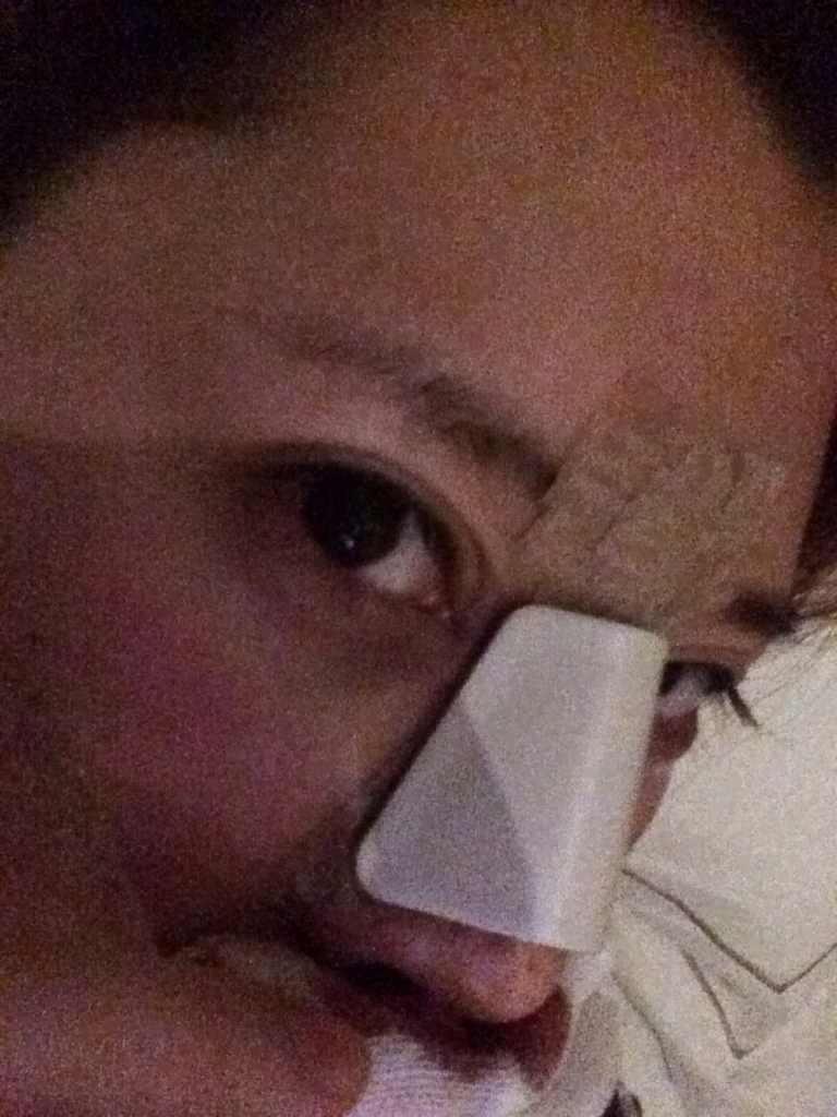 鼻综合 肋骨垫鼻尖 膨体隆鼻 鼻翼缩小 鼻头改善案例