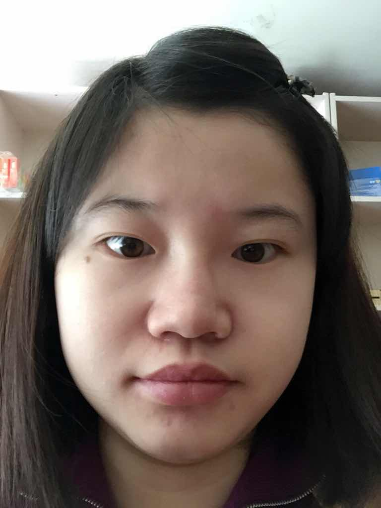 隆鼻手术后的日常护理会不会很麻烦,你们也看见了我这大鼻子实在是太抢镜了,我一定要做好!