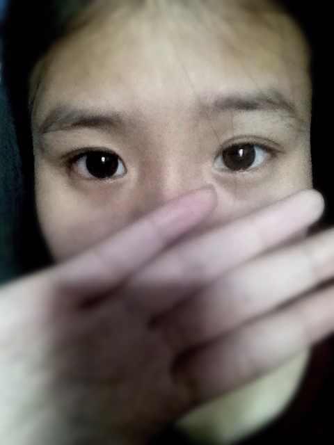 鼻头整形效果好不好?有没有鼻尖整形手术介绍,看挡住鼻子的话我的长相还是很精致的。