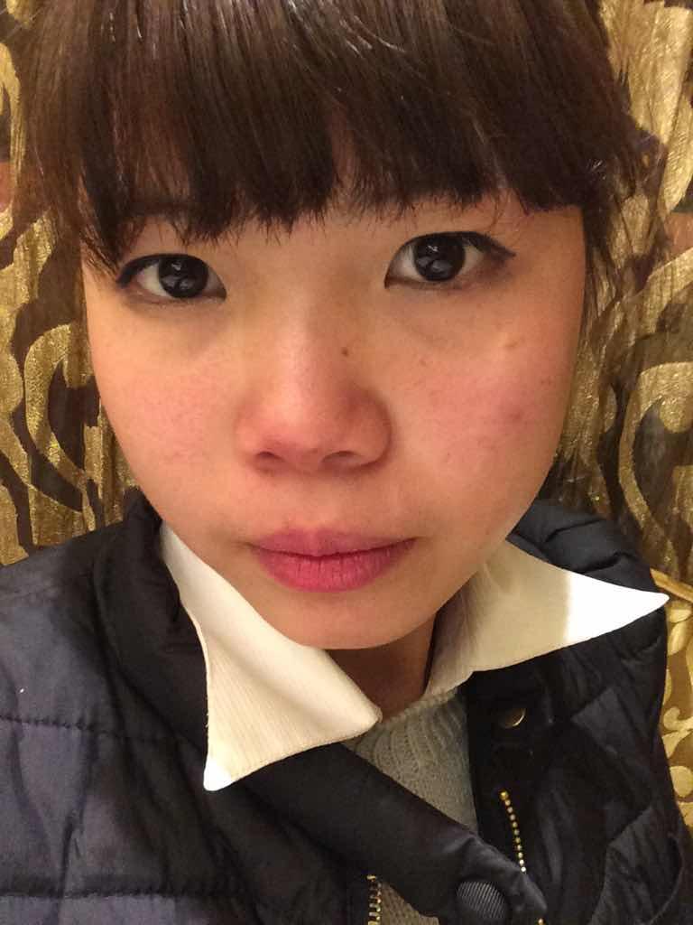 激光治疗红血丝的效果如何?鼻子脸蛋都很红 要怎么做手术啊?