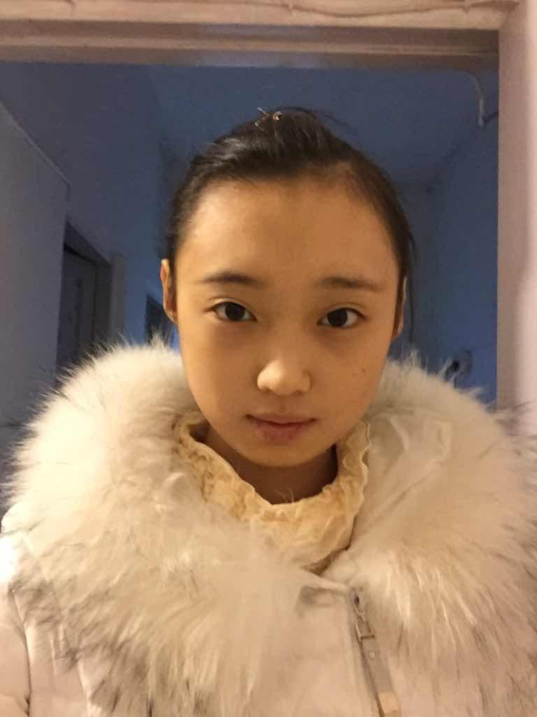 未满十八岁能做双眼皮手术吗?我还未满18岁,做手术有风险么?