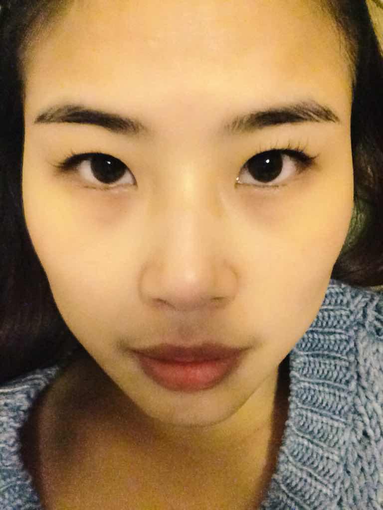 """内双的人能做双眼皮吗?会不会出现所谓的""""三眼皮""""。这是内双,谢谢大家了。"""