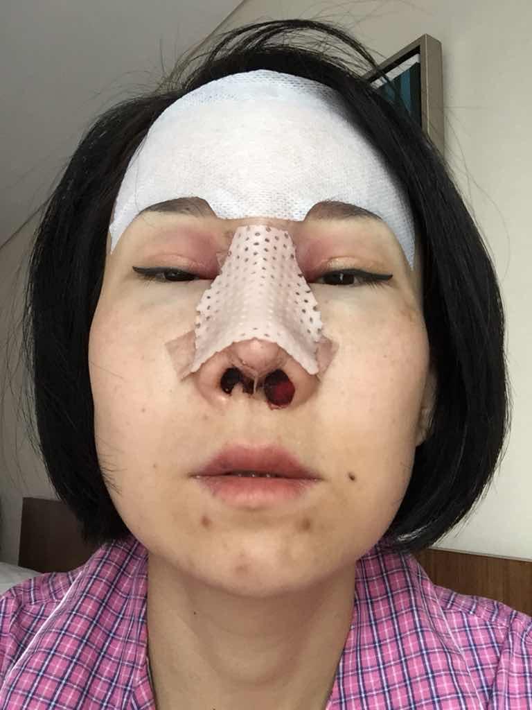 童颜术+鼻修复15天案例,开刀有风险整形须谨慎啊。