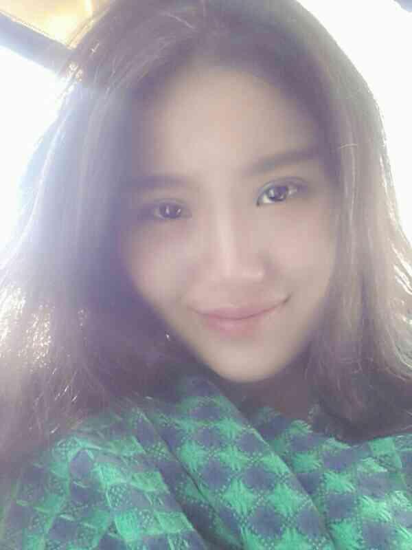 Park双眼皮手术+瘦脸针三个星期案例。