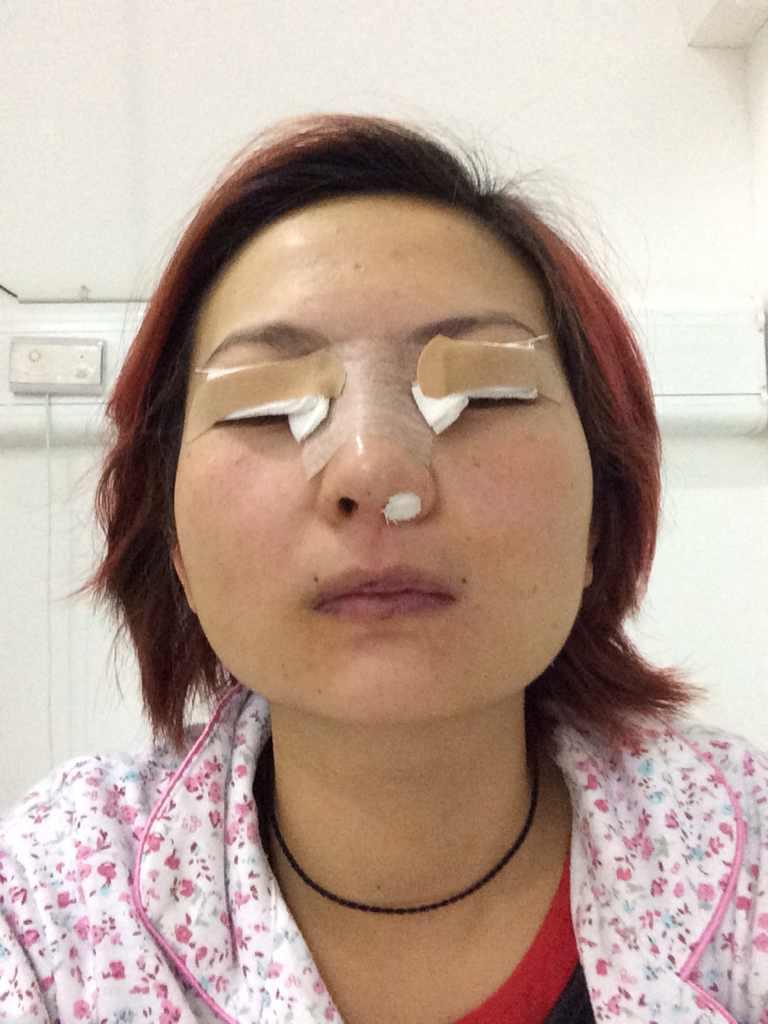 埋线双眼皮什么时候拆线?拆线后能恢复原样吗?