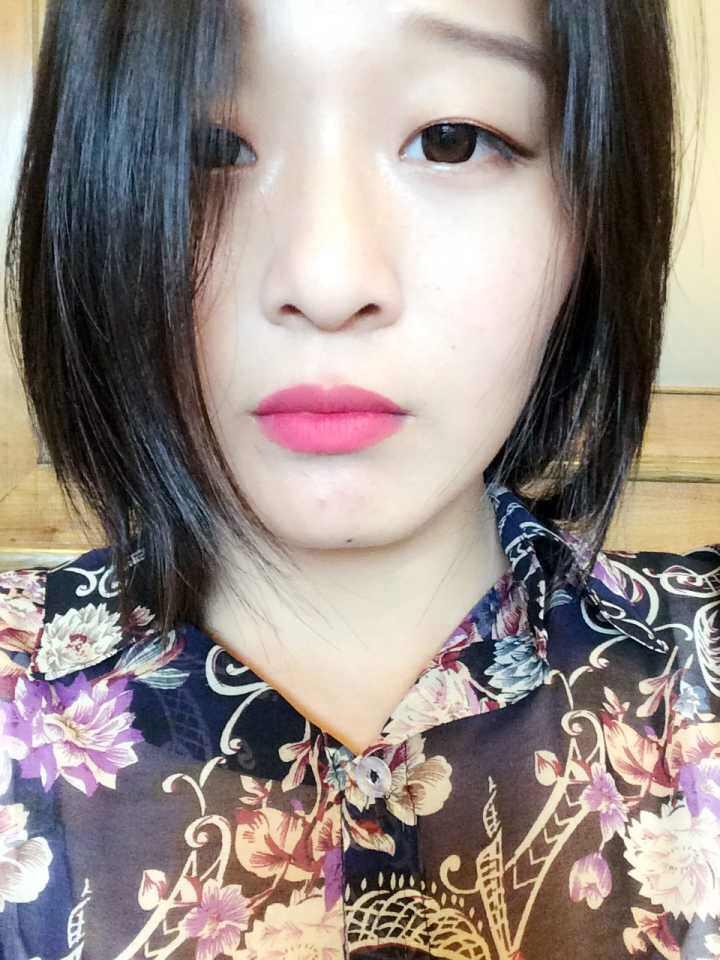 韩式埋线双眼皮效果真的好吗?