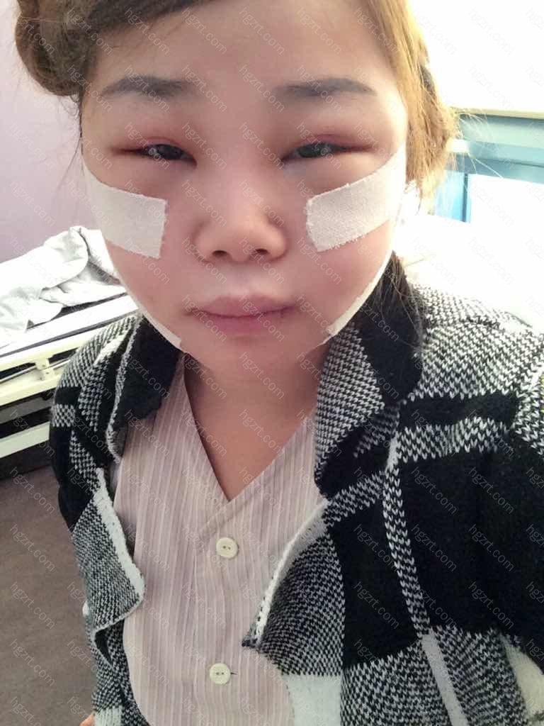 手术时的样子