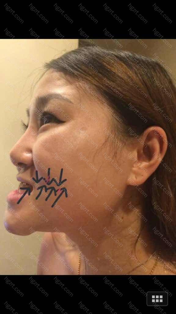 手术之前侧脸