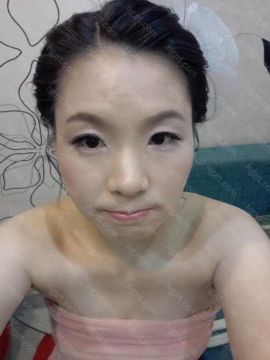韩式改脸型术到底怎么样啊?求解答啊