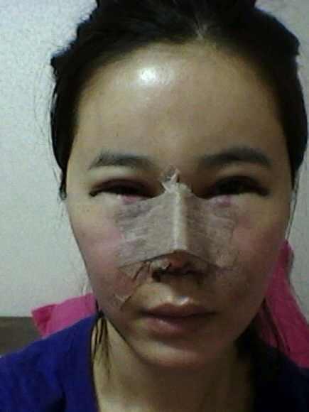 双眼皮+开眼角+隆鼻+鼻尖整形案例,是做了很成功的整形哈。