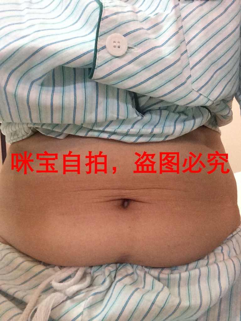 腰腹部抽脂案例,里面还塞的纱布