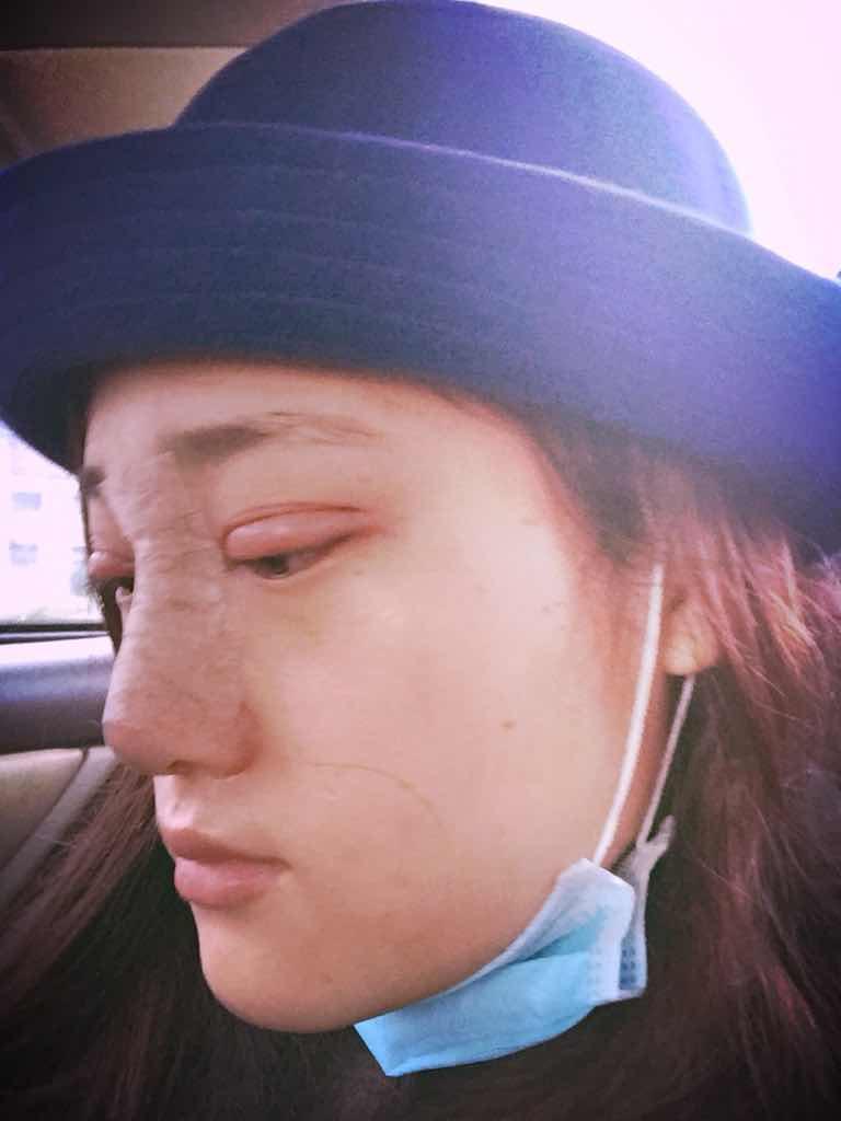 隆鼻修复手术+双眼皮修复手术案例,爱美之心太强烈。